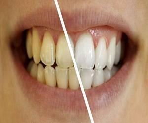 Tips Cara Memutihkan Gigi Dengan Cepat Aman Efektif