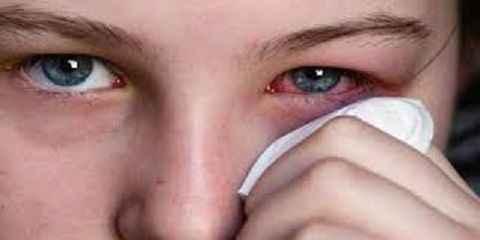 penyebab mata merah sebelah kiri kanan